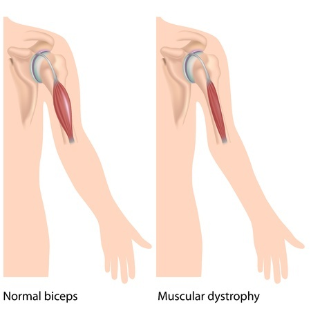bicep with muscular dystrophy